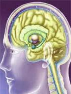 accident-vasculaire-cerebra