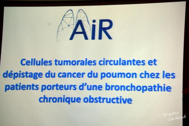 Chu Nice cancer poumon
